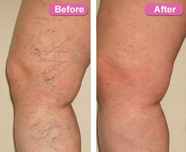 Spider Vein Treatment Enhance Studio Medi Spa Ltd Vernon Bc Spa