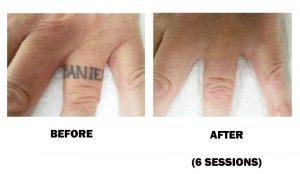 Tattoo Removal – Enhance Studio Medi-Spa Ltd, Vernon, BC, Spa, Skin ...