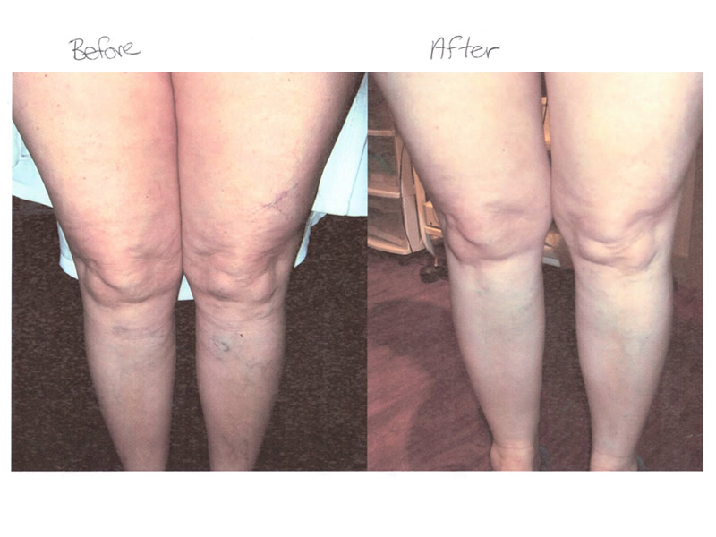 Vein-Treatment-Before-After