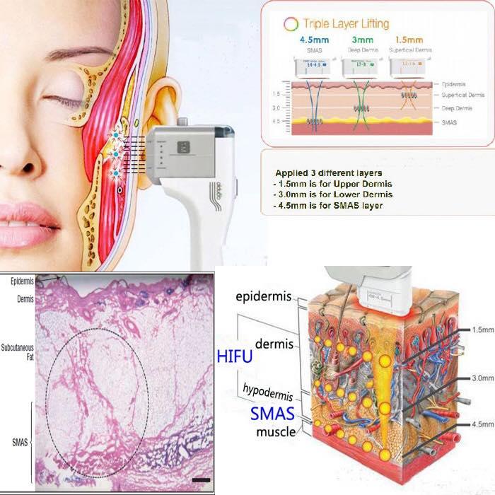 Fat Reduction, Face Lifting, Skin Tightening – Enhance ...