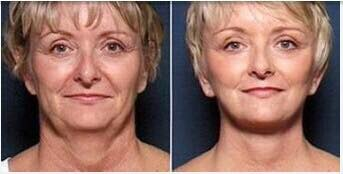 Fat Reduction Face Lifting Skin Tightening Enhance