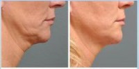 Neck & Chin Lift