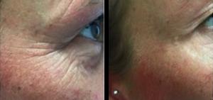 CooLifting Facial Treatment Vernon BC