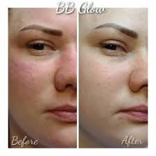 BB Glow Treatment Before and After